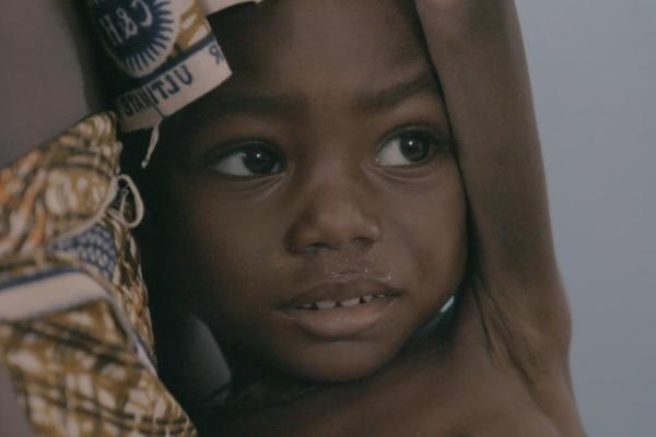 bimba nera in primo piano malnutrita