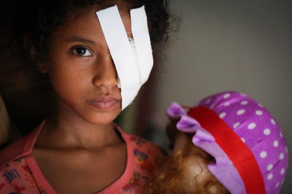 bambina yemenita con una fascia medica sul viso che le copre un occhio. Tiene in mano una bambola peluche.
