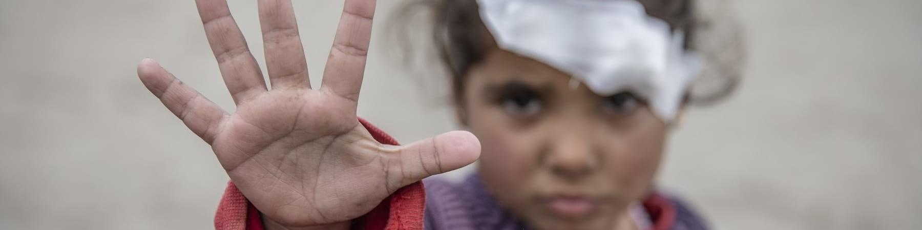 """Bambina con un cerotto sull occhio sinistro fa un gesto di """"stop"""" con la sua mano"""