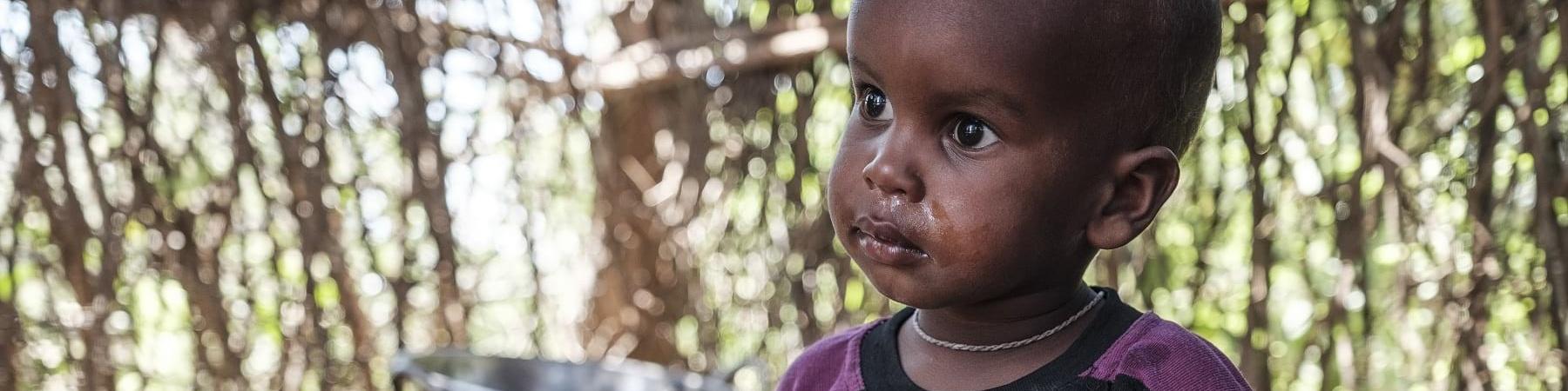 Bambino africano seduto a terra riparato in una capanna indossa una maglietta viola a strisce gialle e guarda alla sua destra.