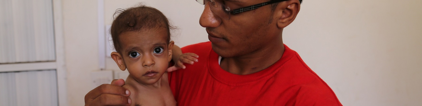 Bambino yemenita malnutrito in braccio a operatore Save the Children