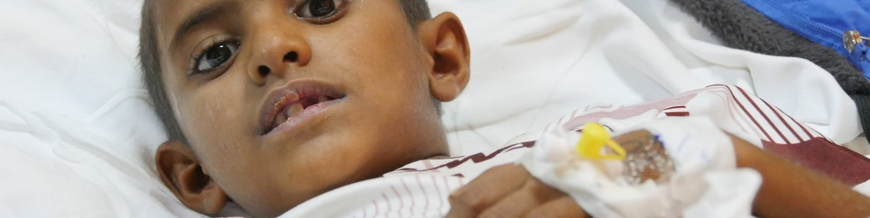 bambino-yemenita-sdraiato-in-letto-ospedale