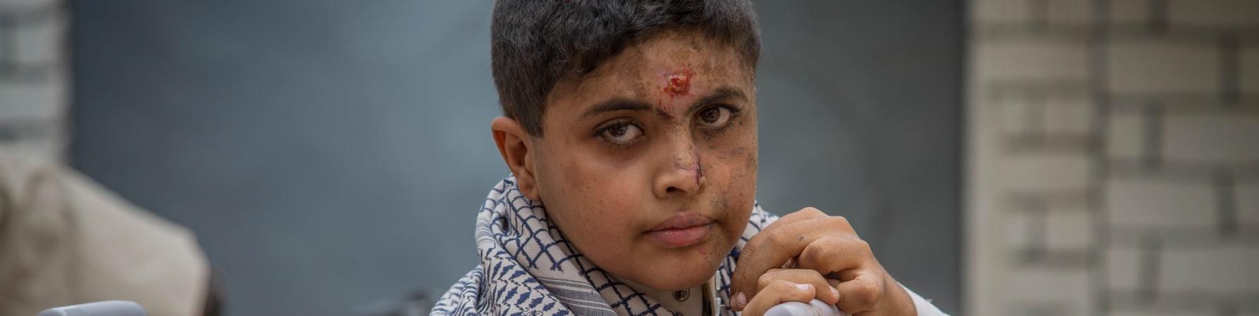 Bambino medio-orientale ferito alla testa