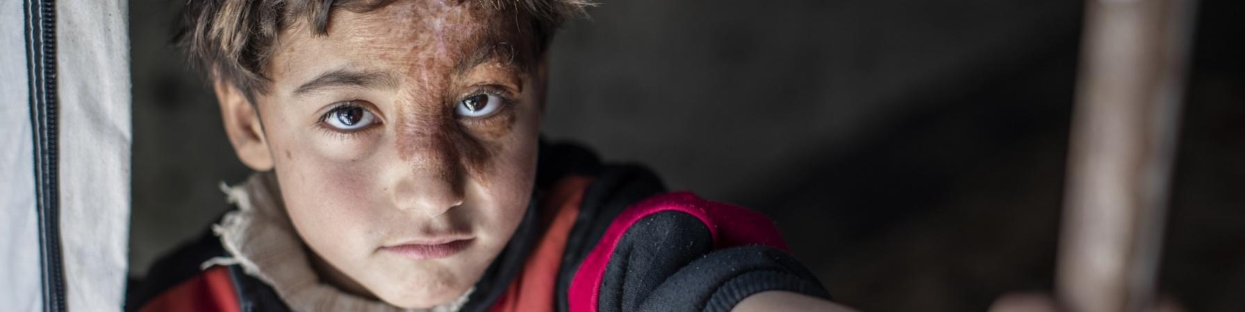 Bambino sfollato in un campo siriano