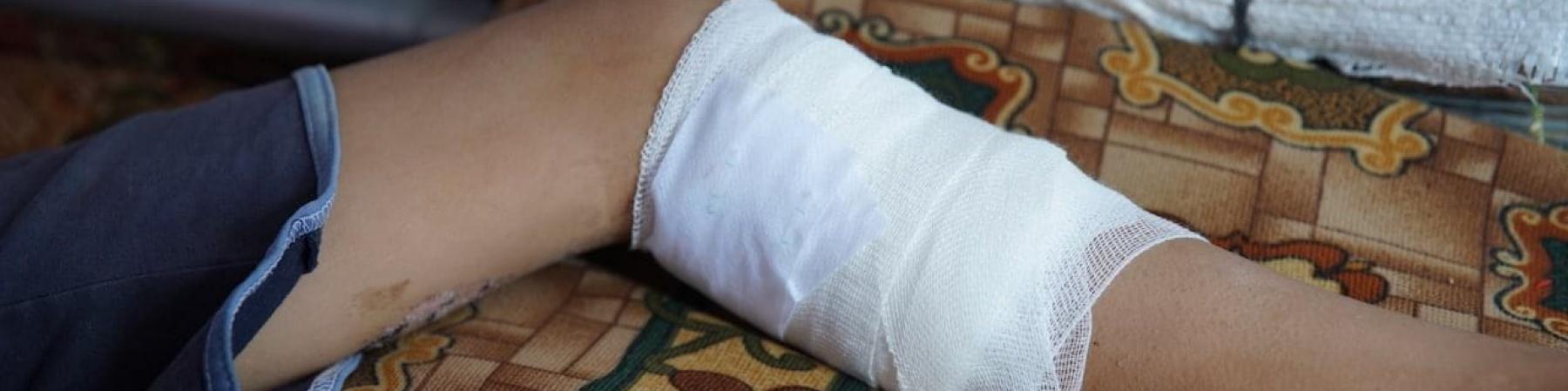 gamba-ferita-bambino-siriano