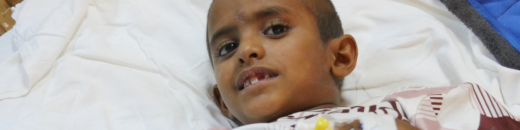 Bambino Yemenita ferito sdraiato in letto di ospedale