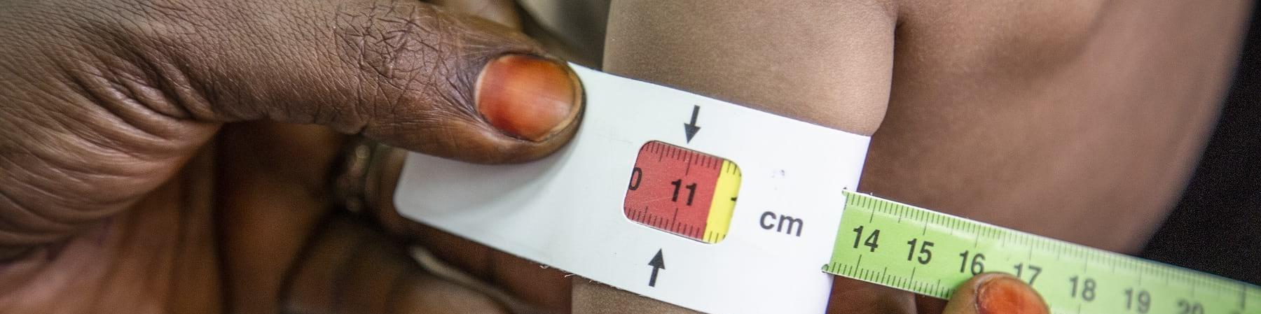 Primo piano delle mani di una donna che misurano il braccio di un bambino malnutrito