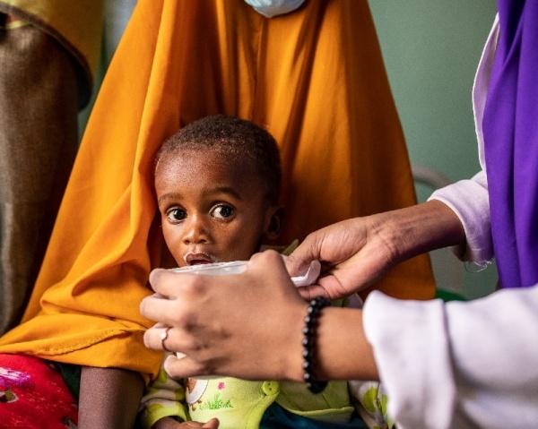 Un bambino viene che soffre di malnutrizione acuta viene curato dagli operatori di Save the Children
