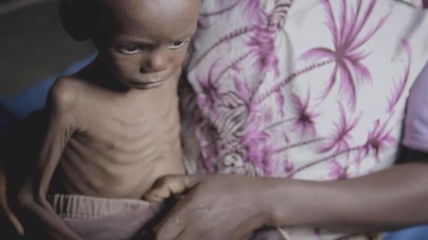 bimbo malnutrito in braccio a suo madre