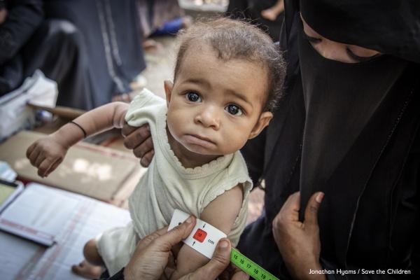 primo piano bambino con gli occhi lucidi mentre gli misurano la circonferenza dell avambraccio per controllare lo stato di malnutrizione