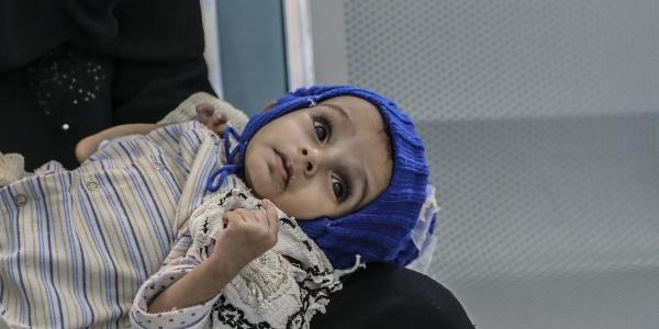 Primo piano di un bambino yemenita di 11 mesi sdraiato sulle gambe della mamma, guarda in alto e indossa un cappello di lana blu e un abitino bianco a righe.