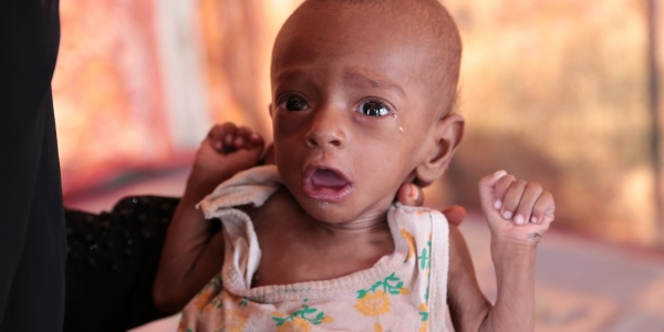 Crisi alimentare Yemen