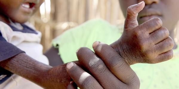 siccità in kenia