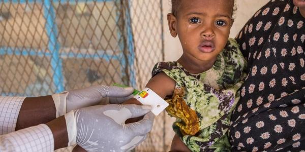 una bambina con vestito verde in braccio a una donna che non e visibile ha un braccialetto MUAC al braccio messo da un operatore sanitario di cui si vedono solo le mani con i guanti.