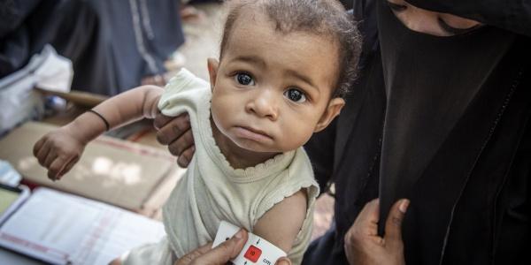 Bimbo yemenita sottoposto al test per la malnutrizione in braccio alla mamma