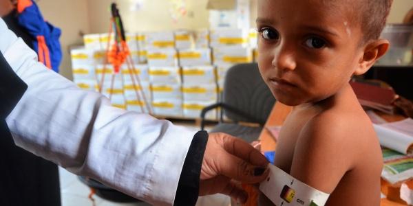 Malnutrizione Yemen