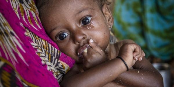 bambina yemen con mano in bocca