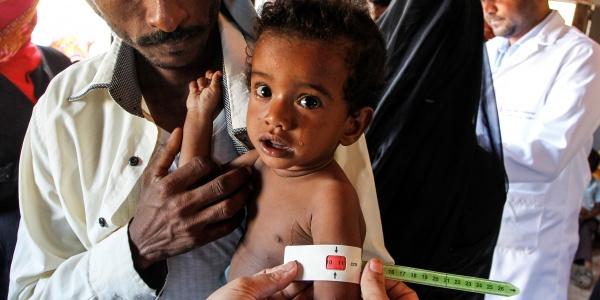 yemen bambini in pericolo
