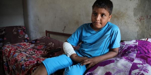 Un bambino yemenita seduto sul letto indossa una tuta celeste a maniche corte e pantaloncini. Ha una fasciatura al braccio e alla gamba